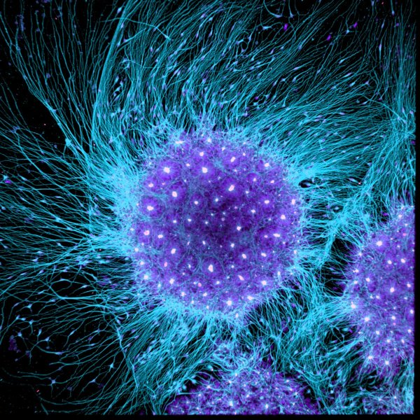 human-brain-cells-differentiated-from-embryonic-stem-cells